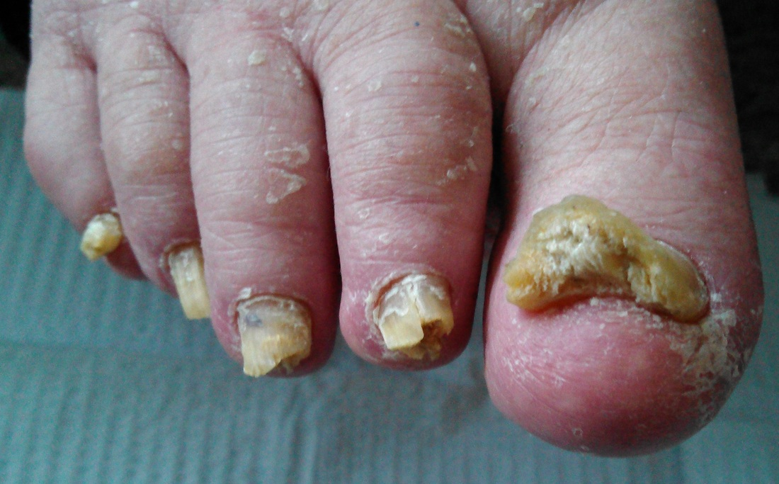 Toenail infections pictures - Awesome Nail